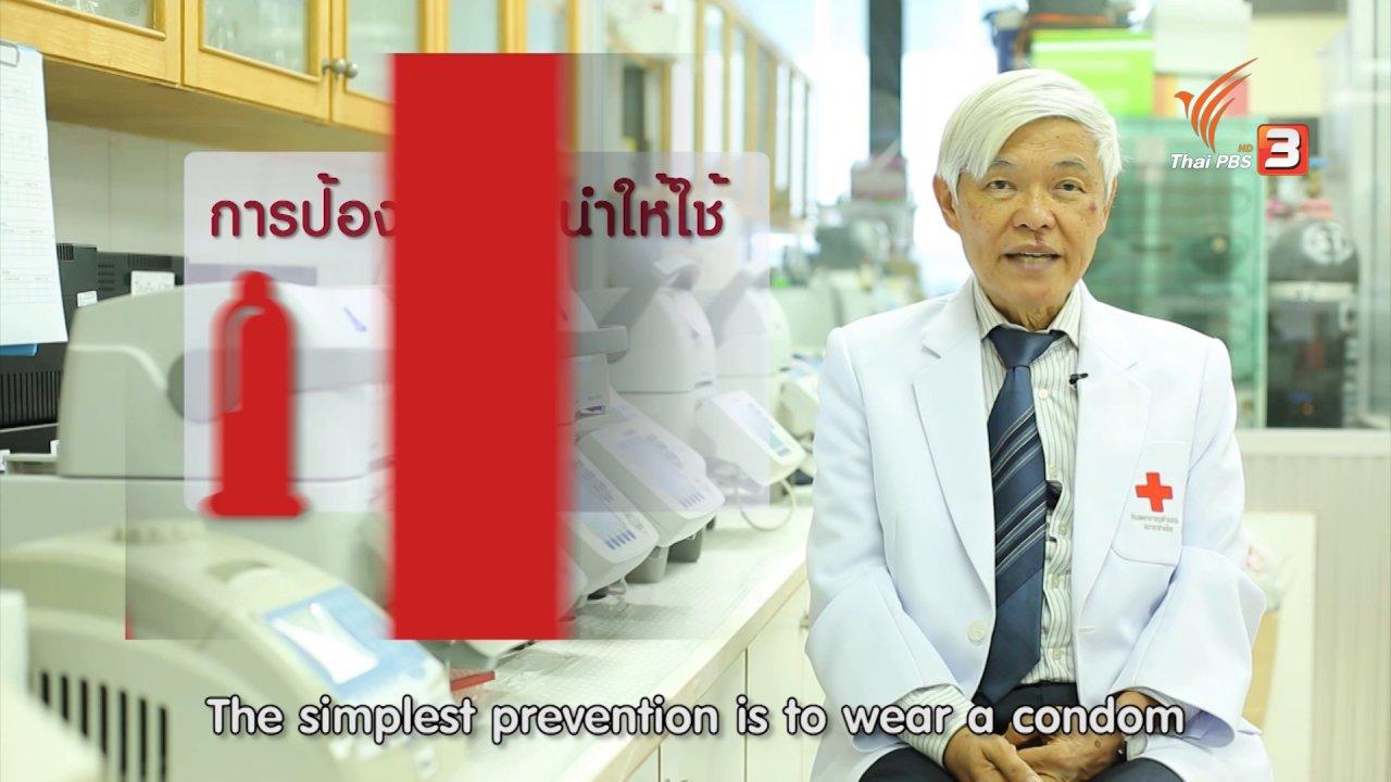 ข่าวค่ำ มิติใหม่ทั่วไทย - ไวรัสซิกา สามารถติดต่อได้ทางเพศสัมพันธ์ FAKE or FACT