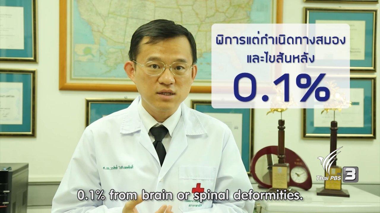 ข่าวค่ำ มิติใหม่ทั่วไทย - soเชี่ยว FAKE or FACT : มีวิตามินที่ช่วยป้องกันและลดความเสี่ยง ความพิการแต่กำเนิดของทารกได้จริงหรือไม่